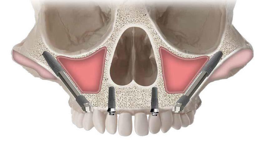 Такие имплантаты имееют большие размеры, по сравнению с классическими, и позволяют прочно закрепиться в скуловой кости, которая более прочная, чем челюстная, и не поддвержена атрофии.