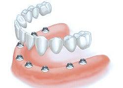 all-on-8-dental-implants-costa-rica