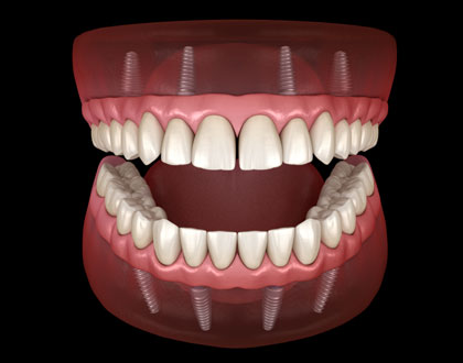 all-on-four-dental-implants-scottsdale